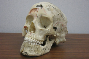 An actual human skull that has been cut into pieces and labeled for medical research. He even came with his own carrying case!